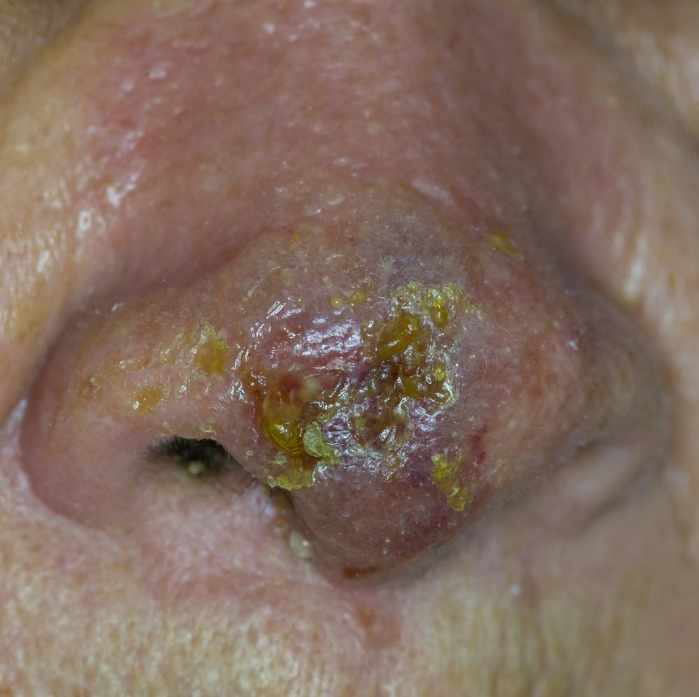 Sores On Face From Drug Use   Northeast Addictions Treatment Center